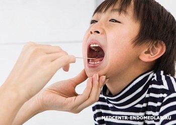 Мазки на грипп